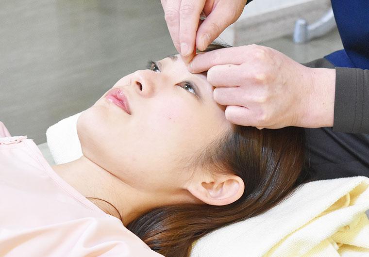 界標準の美容鍼